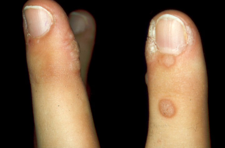 Eczema su mani e la piscina